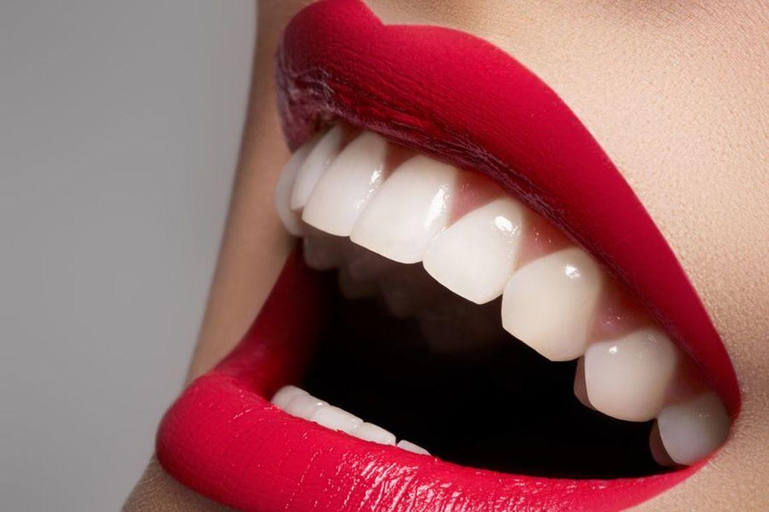Très ✰ 5 astuces pour des dents blanches ✰ - Ellia Rose MK25